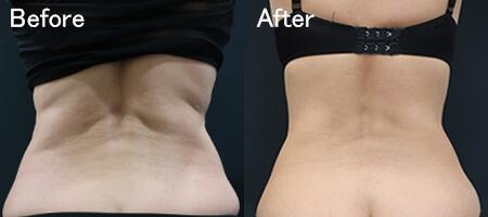 クリスタル(脂肪冷却分解治療)の治療効果