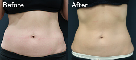 クリスタルによるお腹の脂肪(脂肪冷却分解)の治療効果