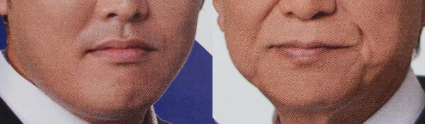 下顔面の老化