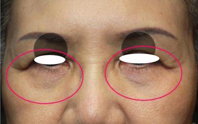 目の下の袋状たるみアグネス1回後