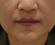 口元のヒアルロン酸治療