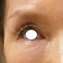 眼瞼下垂治療後