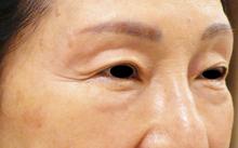 眼瞼下垂手術せずに治療直後の画像