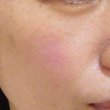 フラクショナルCO2レーザー治療後の症例写真