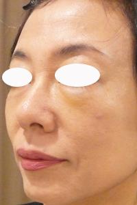 目のクマをヒアルロン酸注射で治療