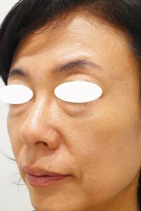 目のクマ治療前写真