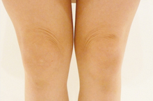 ひざのシワのサムネール画像