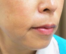 口元ヒアルロン酸注射後の写真