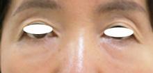 目の下のクマ治療後