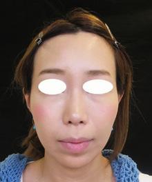 頬のたるみをヒアルロン酸で治療