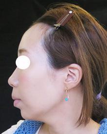 たるみ治療後の写真横顔
