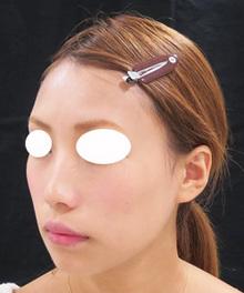顔の痩せをヒアルロン酸で治療した後の写真