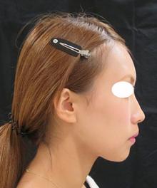 ヒアルロン酸注射後の写真横顔