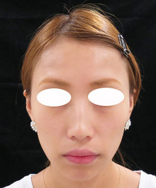 ヒアルロン酸注射前の写真