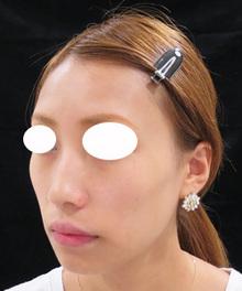 顔の痩せをヒアルロン酸で治療