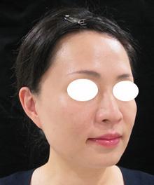頬のたるみ治療前の写真