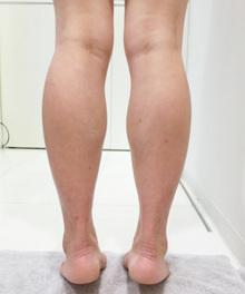 ふくらはぎの筋肉が太い場合の治療