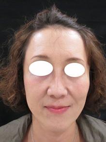 ヒアルロン酸注射後の写真