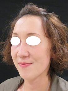 ヒアルロン酸注射後の写真のサムネール画像