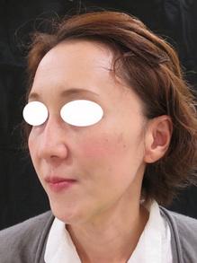 ヒアルロン酸注射前の写真のサムネール画像