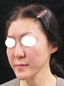ヒアルロン酸でお顔を整えた後の写真