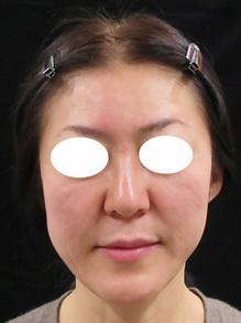 ヒアルロン酸補正後の写真のサムネール画像