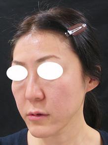 ヒアルロン酸が多過ぎてチンダル現象が起きている写真
