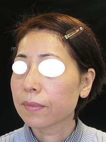 頬とホウレイ線のヒアルロン酸注射