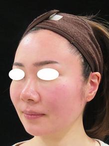 鼻の横肉をスッキリ