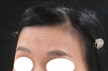 眉の上の凹み
