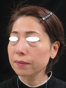 目の下の袋状たるみ治療