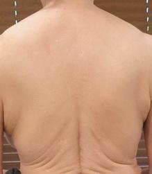 背中の贅肉のサムネール画像