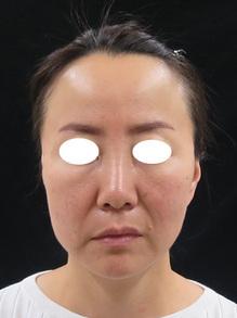 3dリフト治療直後の写真のサムネール画像