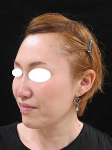顔のたるみ治療前の写真