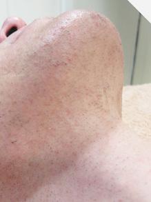 アゴと首のひげ脱毛後の写真