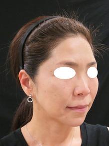 たるみ治療後の写真ビスタシェイプのサムネール画像