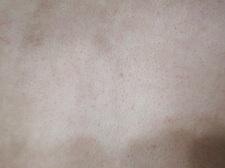 毛孔性たいせんレーザー治療