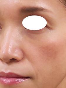 頬の痩せのサムネール画像