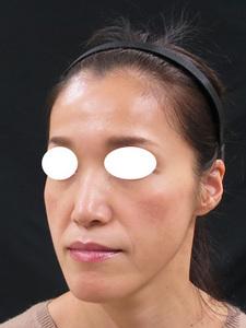 痩せた顔のサムネール画像