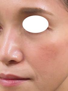 頬の痩せにヒアルロン酸注射