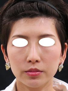 ヒアルロン酸注入前の顔
