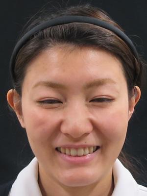 ボトックス注射後の笑顔