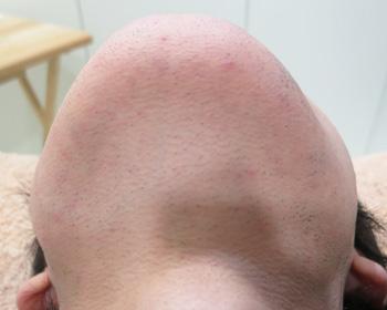 医療レーザー脱毛による髭脱毛後の写真