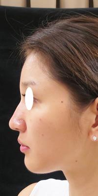 ヒアルロン酸を注射した後の横顔写真