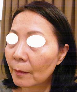 ヒアルロン酸注射治療前の写真