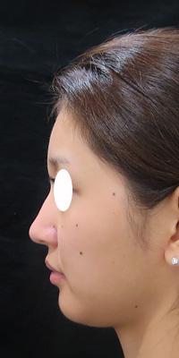 ヒアルロン酸注射前の横顔