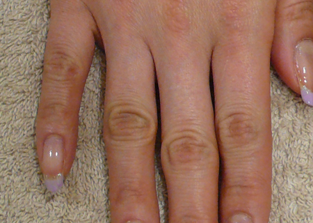 指の節が目立つ