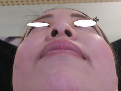 鼻の位置を前に出す