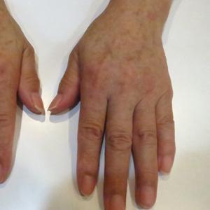 手の甲にヒアルロン酸注射