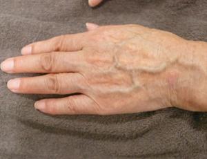 手の甲が痩せている画像
